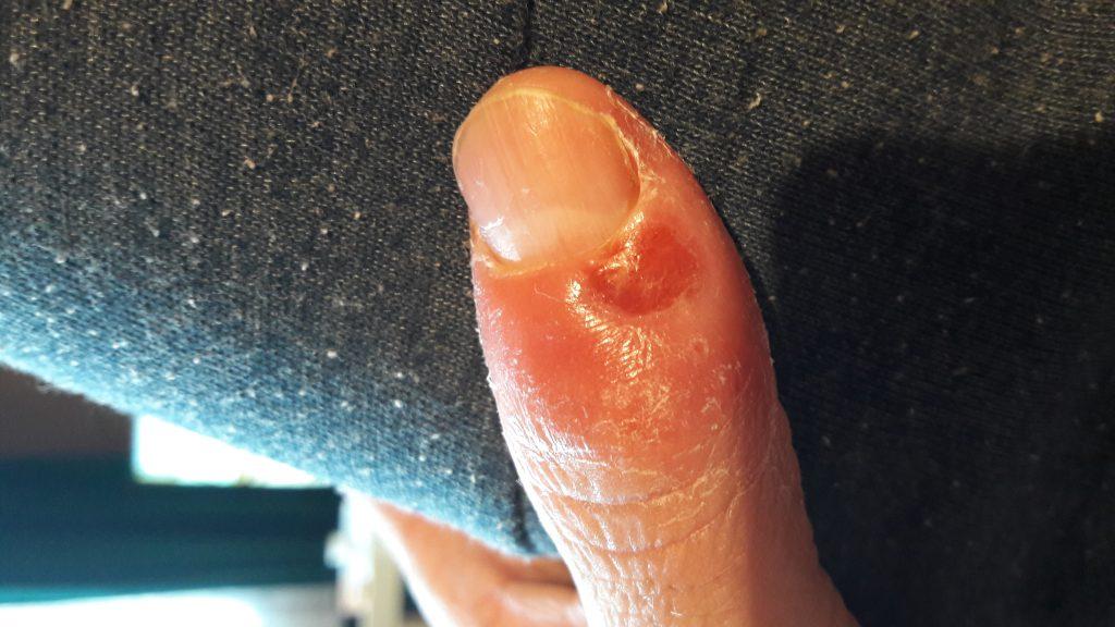 Kciuk zakażony Staphylococcus aureus