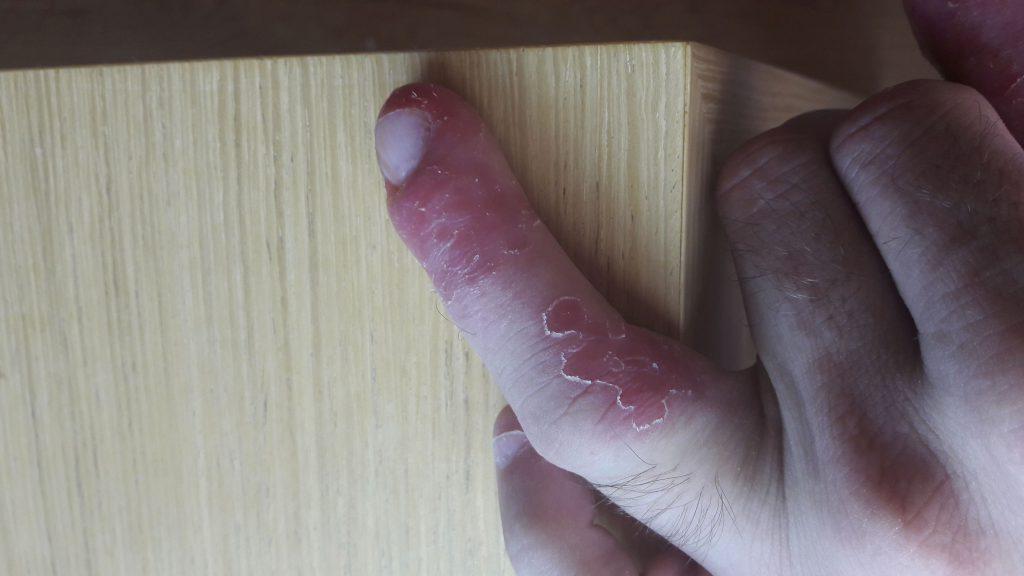 Środkowy palec zakażony Staphylococcus aureus