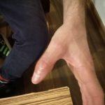 Zdrowy kciuk po zabiegach generatorem Plazmowym