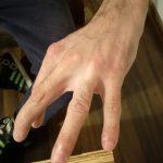 Zdrowa dłoń po zabiegach generatorem Plazmowym